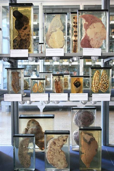 Museum – Charité Museum of Medical History Berlin