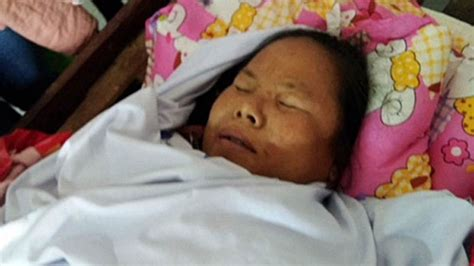 Lao Woman Dies in Childbirth as Doctor Ignores C-Section Plea