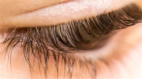 Woman Discovers Over 100 Mites in Eyelashes Because of