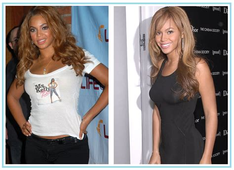 Sexy Beyonce Before and After Nose Job & Weight Loss