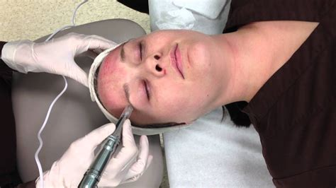 MD Pen micro skin needling of the forehead - YouTube